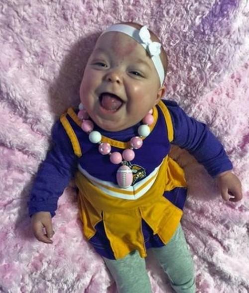 زبان بزرگ این نوزاد همه را متعجب کرد (عکس)