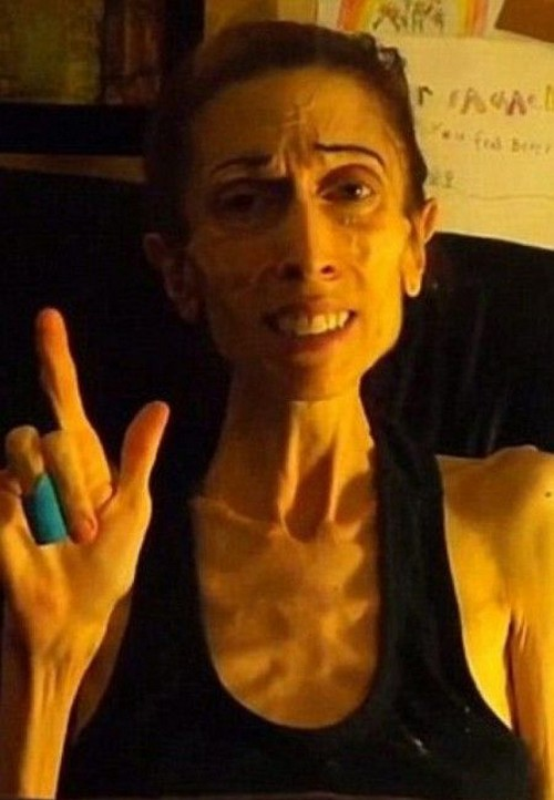 قیافه ی باورنکردنی این خانم 20 کیلویی را ببینید!! (عکس)