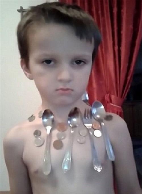 بدن این پسر خاصیت جذب آهن دارد (عکی)