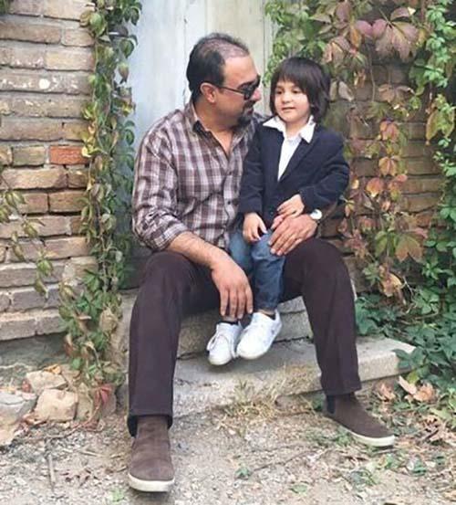 ظاهر جدید بازیگر مشهور ایرانی بعد از کاشتن مو +تصاویر