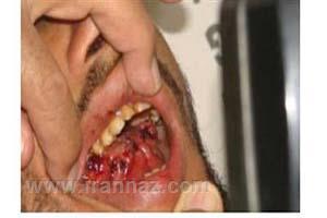 زنی زبان مردی را بخاطر لب گرفتن زوری با دندان کند +عکس