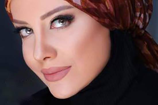 بازیگر زن ایرانی ژل لبهایش را تخلیه کرد +عکس