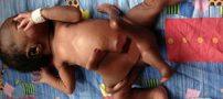 نوزادی با هشت دست و پا بدنیا آمد +تصاویر