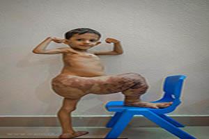 رشد توقف ناپذیر پای این کودک +تصاویر