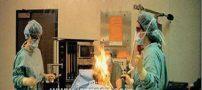 باد معده یک بیمار اتاق عمل را به آتش کشید +عکس