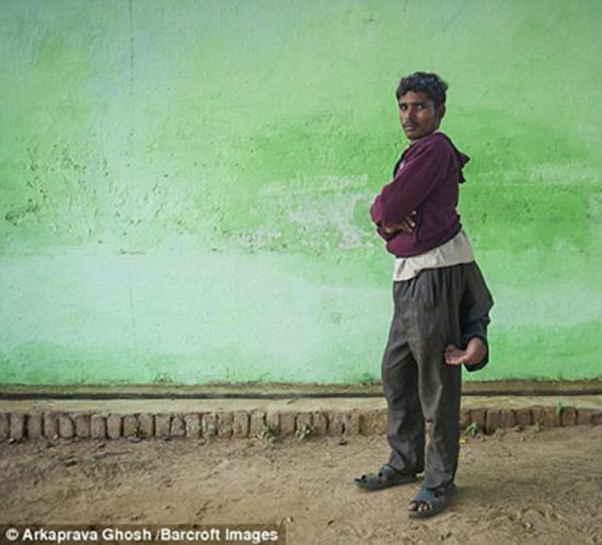 زندگی پسر جوان با 4 پا در بدن +عکس