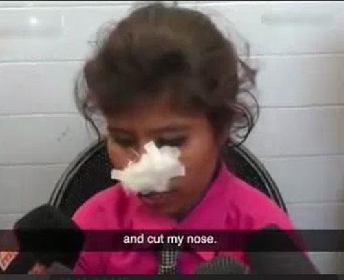 مردی که بینی همسرش را با دندان کند +عکس و فیلم