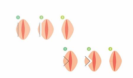 همه چیز درباره واژینوپلاستی و لابیاپلاستی زیبایی آلت زنانه