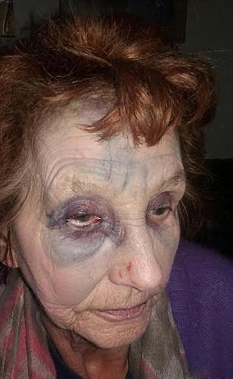 ضرب و شتم پیرزن بیچاره روز روشن در خیابان +تصاویر