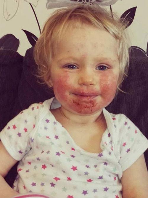 چهره این دختر زیبا بخاطر یک بوسه زشت شد +تصاویر