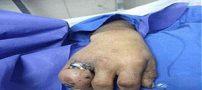 انگشتر تنگ مرد تهرانی را به بیمارستان کشید +تصاویر