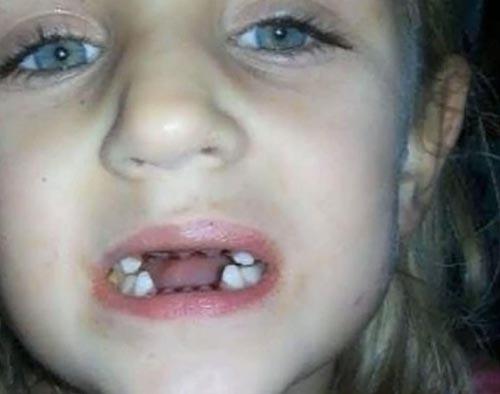 لو رفتن کار وحشتناک دندانپزشک با بچه ها +تصاویر