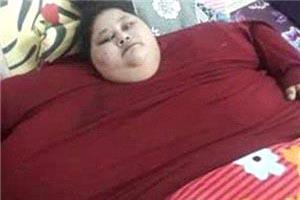 چاقترین زن دنیا رایگان جراحی میشود +عکس