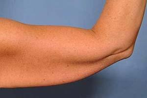 درمان شل شدن پوست در هنگام لاغری