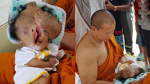 تولد نوزادی عجیب الخلقه در تایلند + عکس 18+