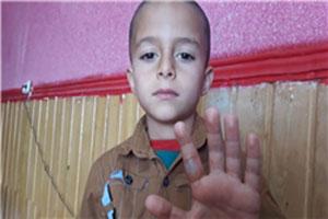 معلم بیرحم ایرانی دست دانش آموز سال اول را سوزاند +عکس