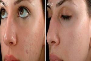 میکرونیدلینگ درمان ترک پوستی و جای جوش