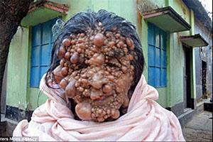 چهره وحشتناک این زن همه را فراری میدهد +تصاویر