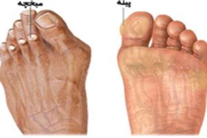 5 راه از بین بردن پینه کف پا و میخچه