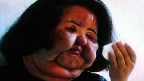 کار وحشتناکی که این زن زیبا با صورتش کرد +تصاویر