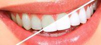 تعداد دفعات مورد نیاز جرمگیری دندان