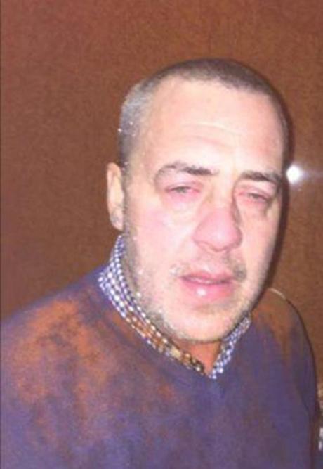مردی که با خوردن گوشت در رستوران نابینا شد +فیلم