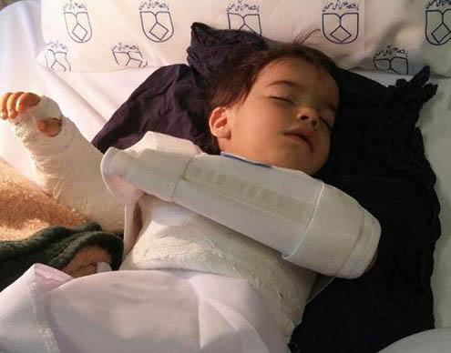 جراحی اشتباهی دست کودک 2 ساله در اصفهان +عکس
