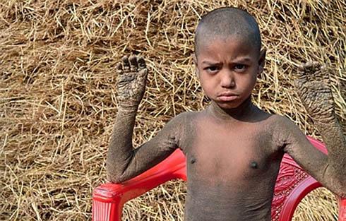 پسر بچه ای که تبدیل به سنگ شد ( عکس )