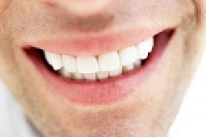 چهار روش خانگی برای سفید کردن دندان