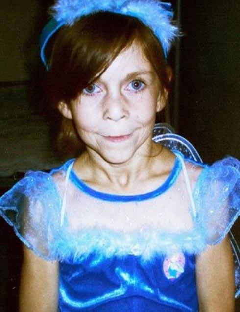 دختر جوانی که ناگهان 40 سال پیر شد (تصاویر)