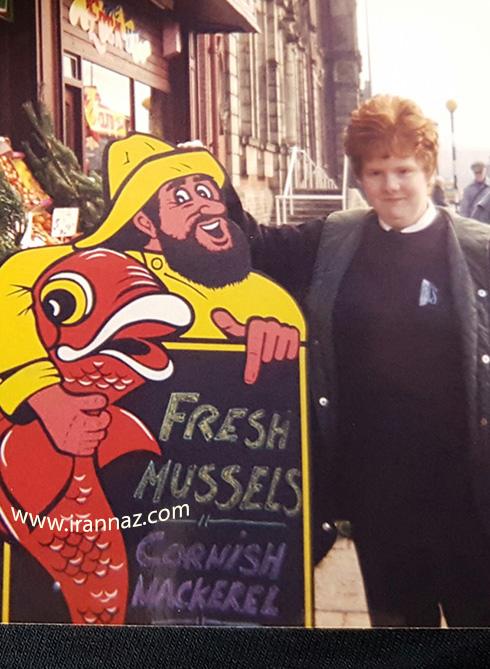 بیماری عجیب زنی که همیشه بوی ماهی و مدفوع میدهد (تصاویر)
