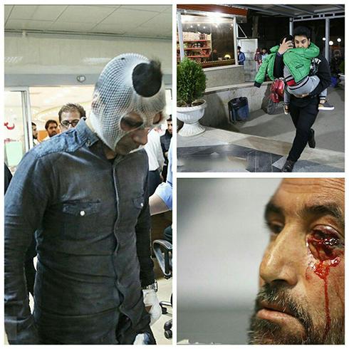 آمار مصدومین و تصاویر چهارشنبه سوری امسال (عکس 18+)