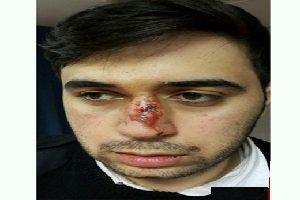 حمله و کتک کاری نیروهای اورژانس با بیل (عکس)