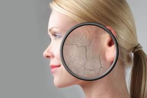 معرفی بهترین مرطوب کننده ها برای پوست خشک