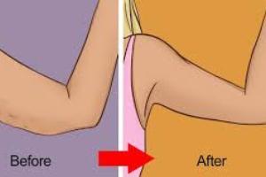 نکات سفت کردن پوست بعد از لاغر شدن