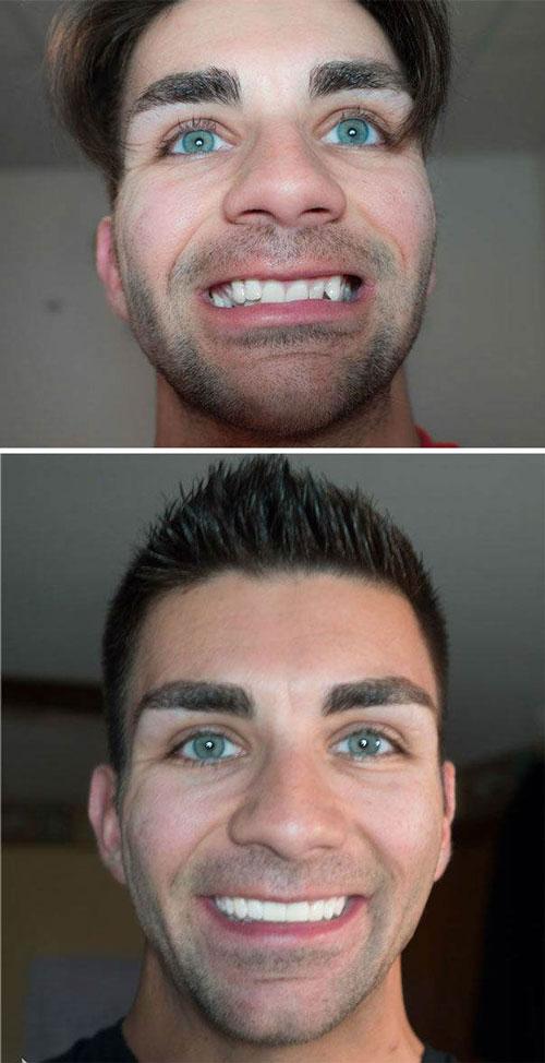 معجزه ارتودنسی در چهره این افراد (عکس)