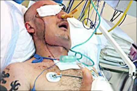 جراحی 24 ساعته بسیار سخت پیوند صورت (18+)