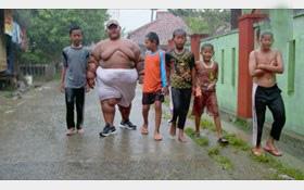 جراحی فوری چاق ترین پسر دنیا (عکس)