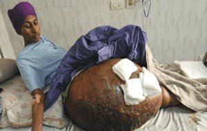تومور 55 کیلویی در بدن این پسر (عکس)