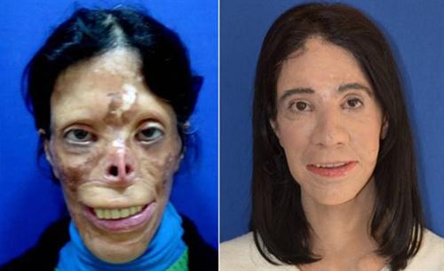 جراحی پلاستیک باور نکردنی بر روی صورت این خانم (عکس)