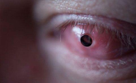 چندش آورترین روش های درمانی در دنیا (عکس)