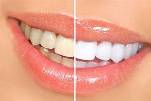 زردی دندان از چیست؟