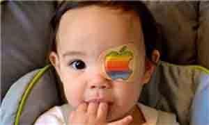 تنبلی چشم ها در چه سنی پدید می آیند