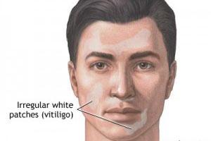 ماسک هایی برای برطرف کردن لکه های سفید پوست