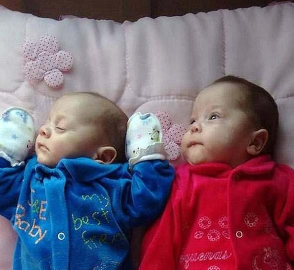 تولد معجزه آسای این دوقلو از مادر مرگ مغزی (عکس)