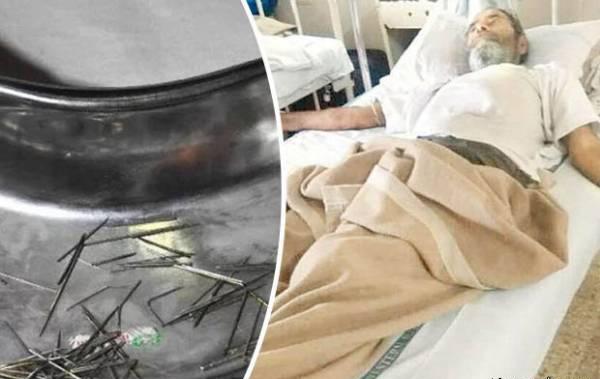 زنده ماندن مردی با 150 سوزن در گلویش (عکس)
