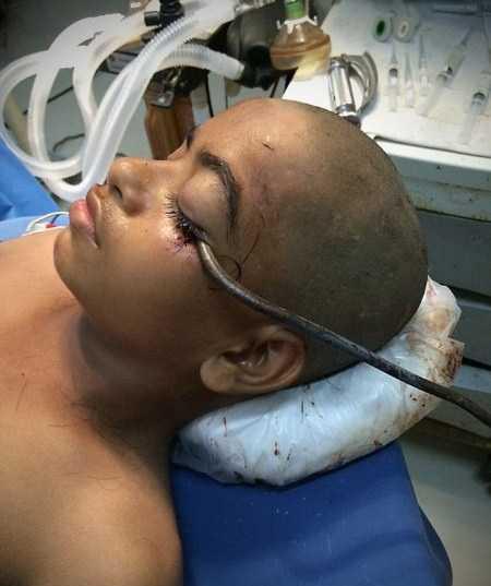 فرورفتن قلاب 15 سانتی در چشم این پسر بچه (عکس)