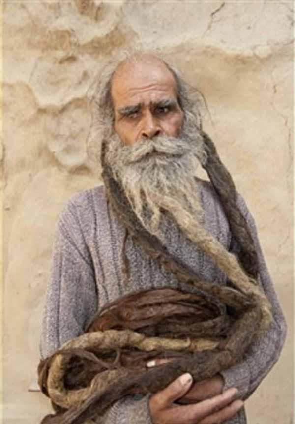 با بدبو ترین و متعفن ترین مرد دنیا آشنا شوید (عکس)