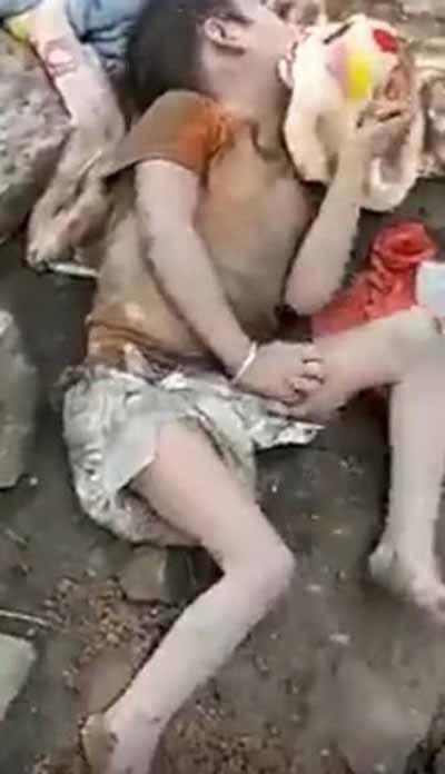 بدن این دختر نگون بخت خوراک حشرات شد (عکس 18+)