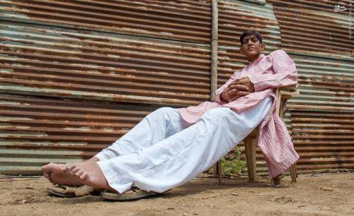 هیچ دختری حاضر نیست با این پسر ازدواج کند (عکس)